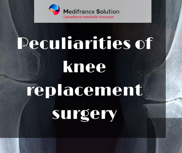 Peculiarities of knee replacement surgery