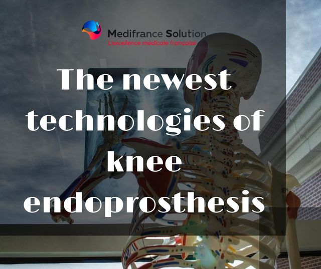 The newest technologies of knee endoprosthesis