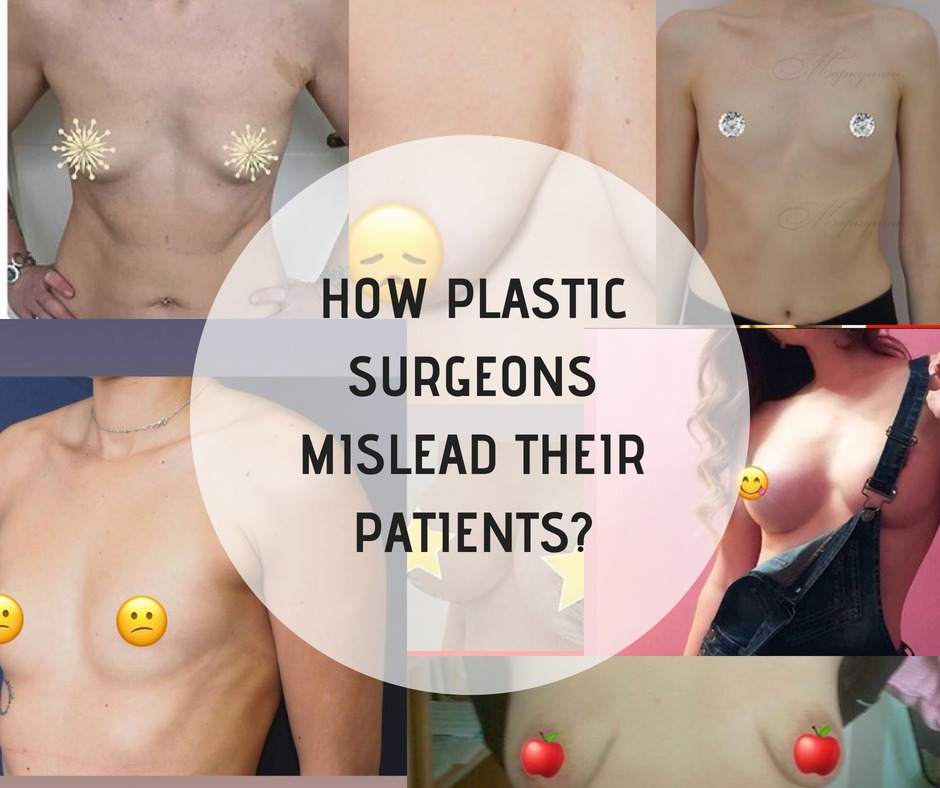 How plastic surgeons mislead their patients